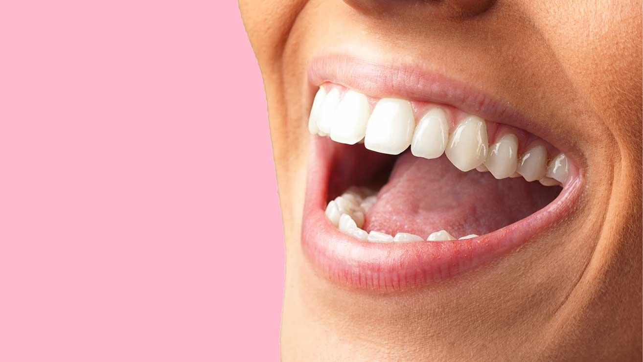 Zähne Selber Bleichen Hausmittel Für Weiße Zähne